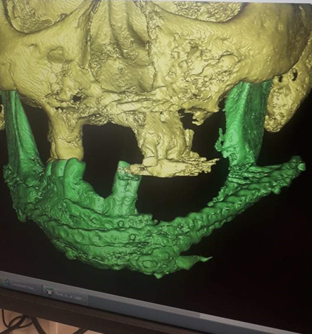 CT Scan of Alraad's mouth: the yellow part consists of bone, the green part of titanium and screws on the right side. Photographer: Anwar Alraad.